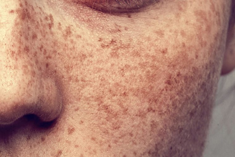 Beauty Blog The Advance Skin Spots The Difference Between Age Spots Moles Melasma And Freckles