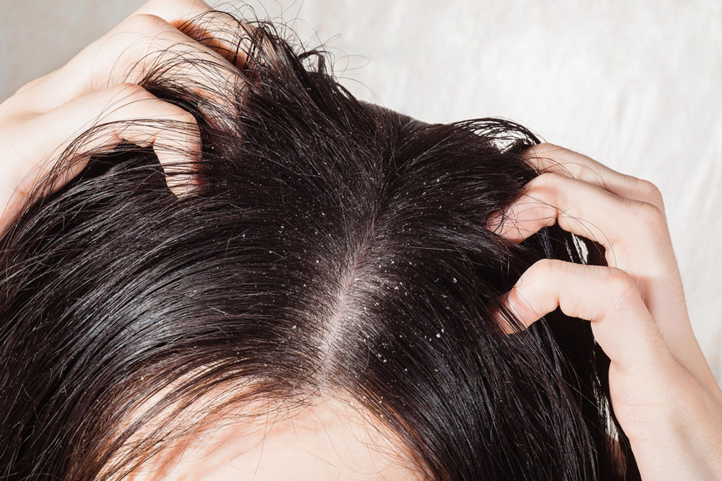 Greasy Hair: Surprising Causes Behind Oily Locks  Reader
