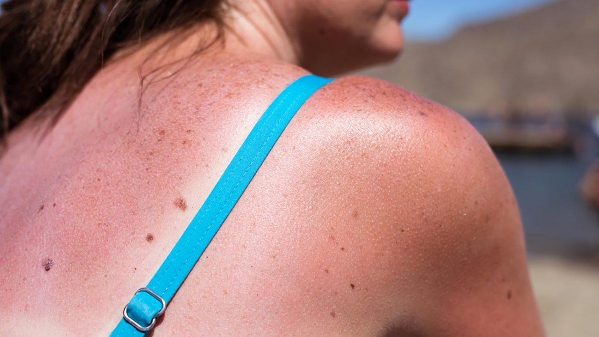 Sun Exposure Signs Youve Gotten Too Much Sun Readers Digest