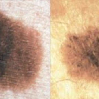 The Differences Between Melasma, Sun Spots, and Other Skin Spots