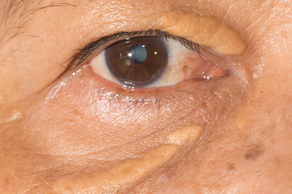 Xanthelasma Removal: Get Rid of Cholesterol Deposits | Reader's Digest