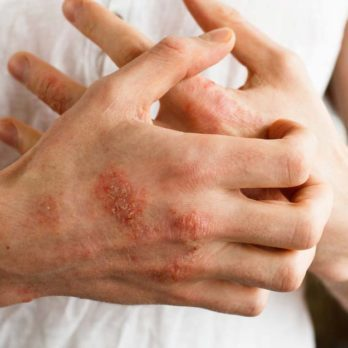10 Types of Poison Ivy Treatment You'll Be Thankful to Know