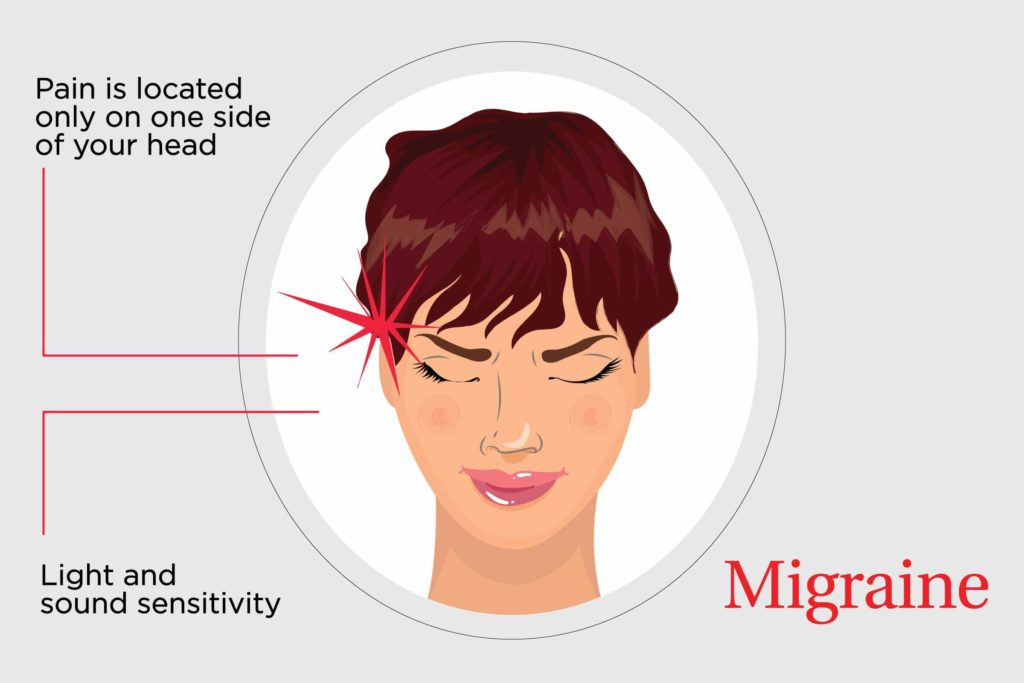 Migraine caused by orgasm
