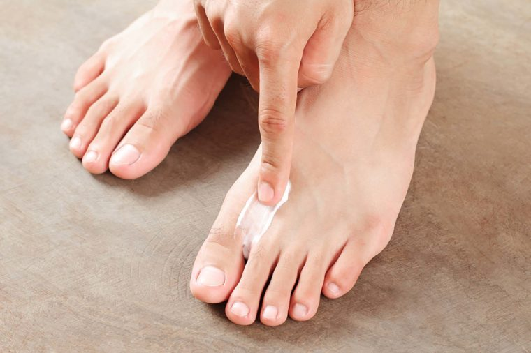 Image result for 4 home remedies to get rid of smelly feet antibiotic ointment