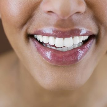 10 Ways You Can Whiten Your Teeth Naturally at Home