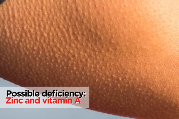 Vitamin Deficiencies: Signs You're Running Low | Reader's ... B12 Deficiency Skin