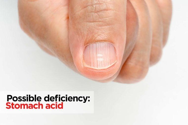 fingernail with ridges