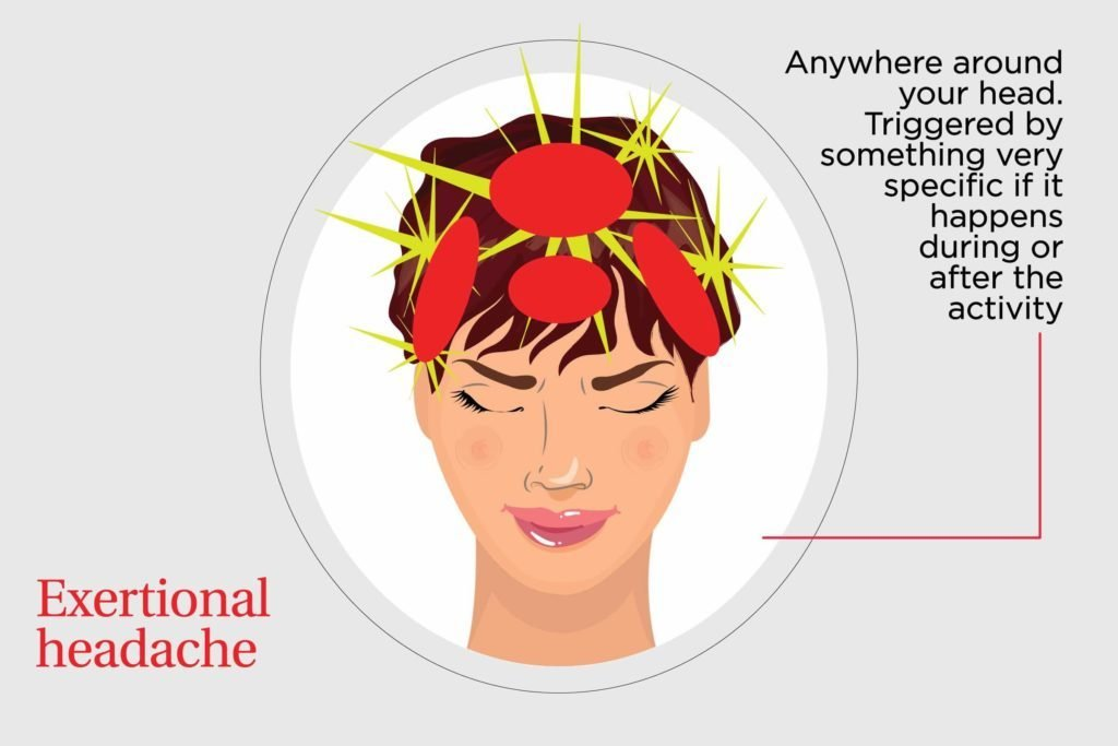 Types Of Headaches And How To Get Rid Of Them Reader S
