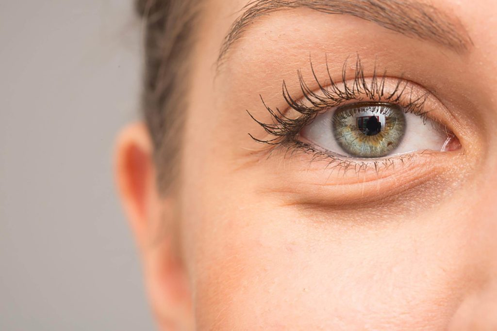 What Causes Dark Circles Under Eyes? | Reader's Digest