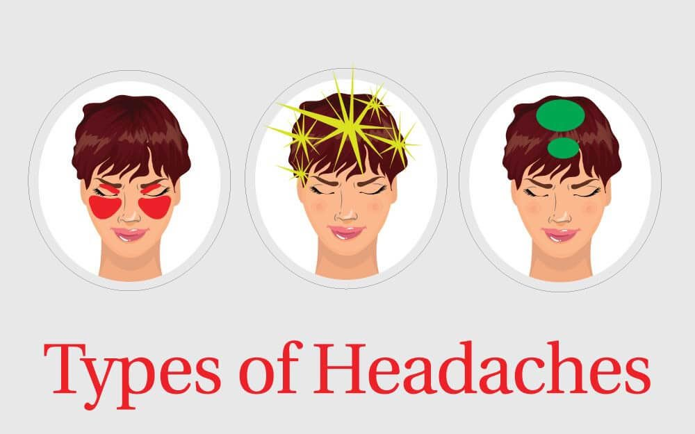types of headaches and how to get rid of them reader 39 s. Black Bedroom Furniture Sets. Home Design Ideas