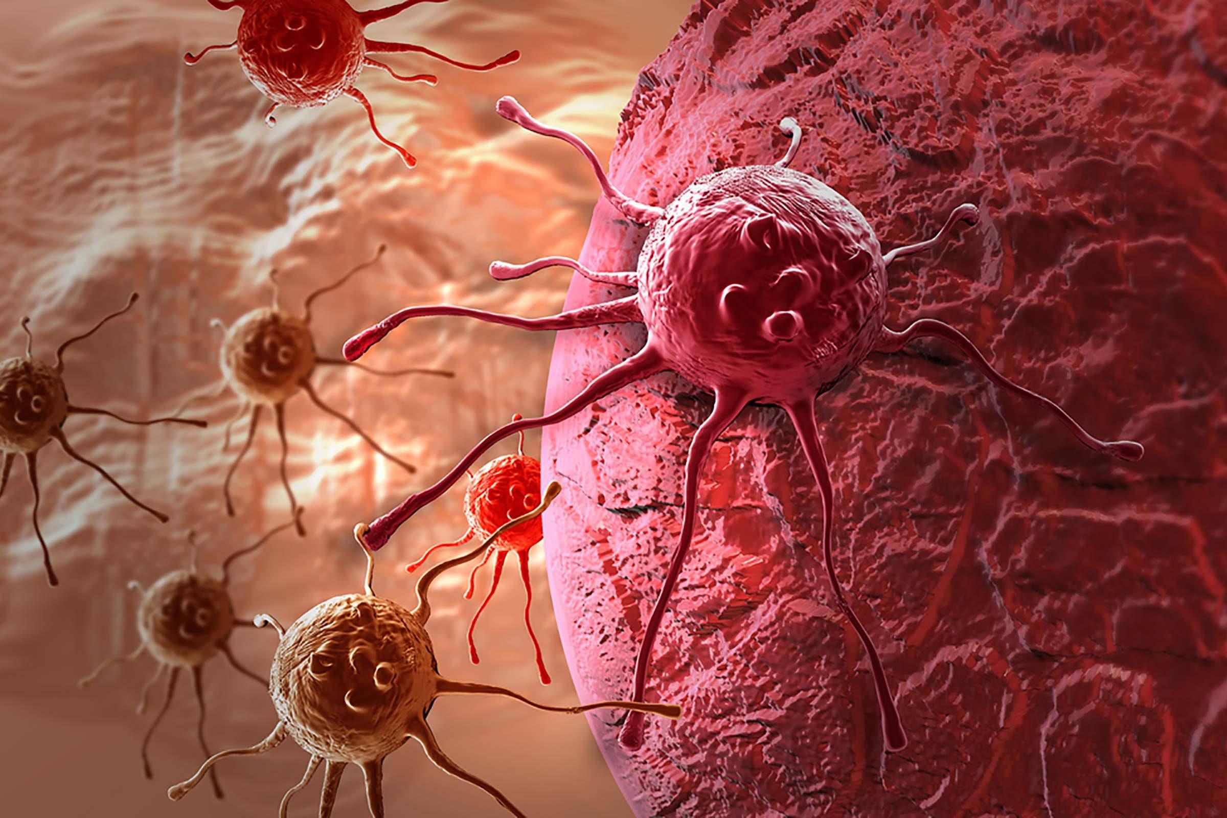 Cet aliment courant faciliterait la multiplication des cellules cancéreuses