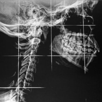 6 Surprising Jaw Pain Causes to Watch Out For