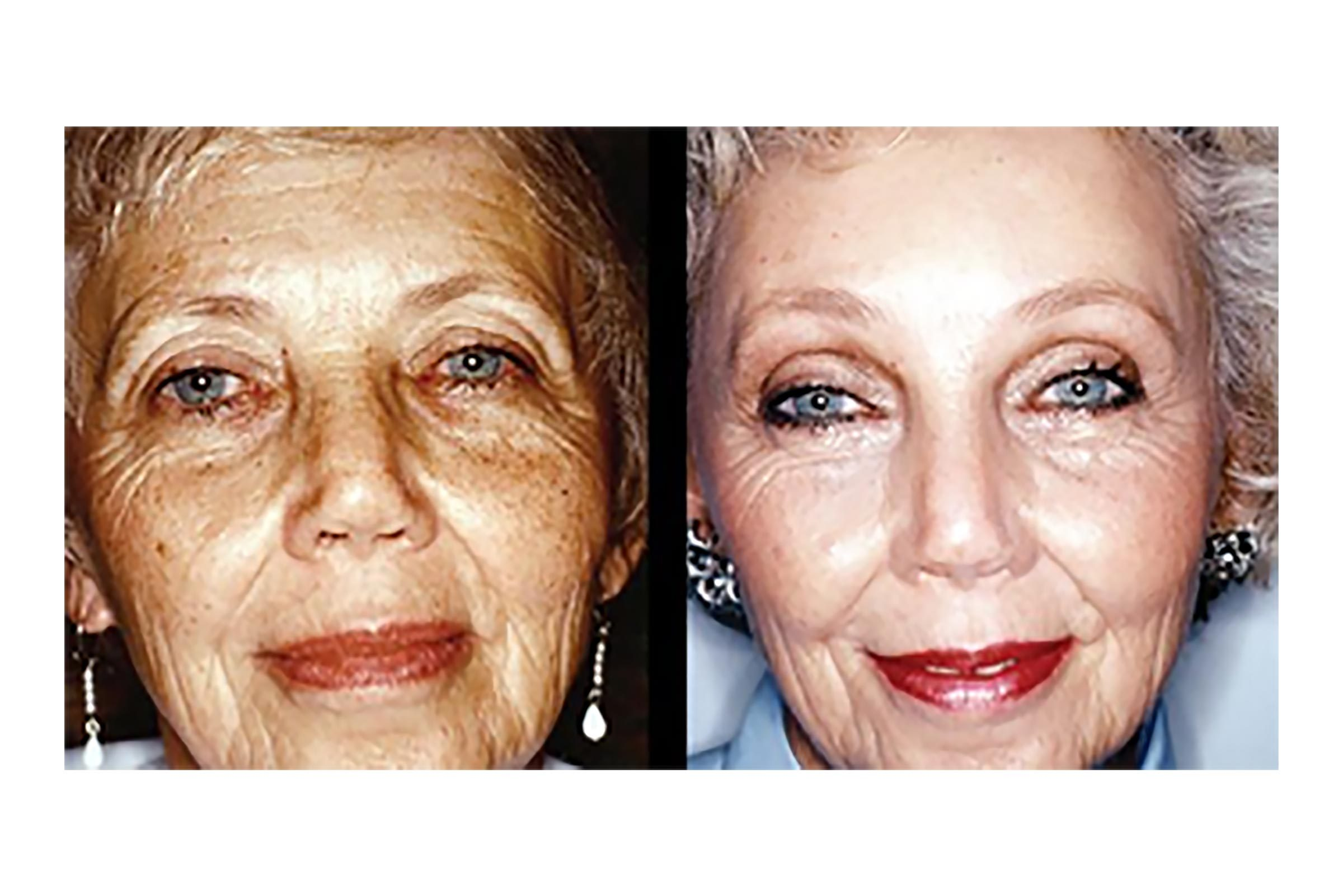 Cosmetic Transformations You Have To See To Believe Readers Digest