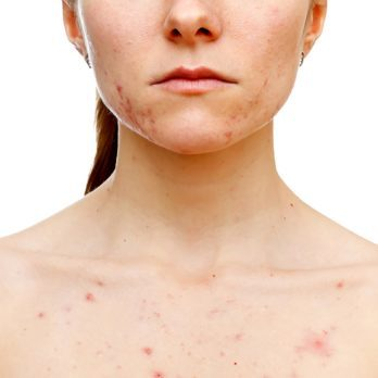 How to Get Rid of Chest Acne for Good, According to a Dermatologist