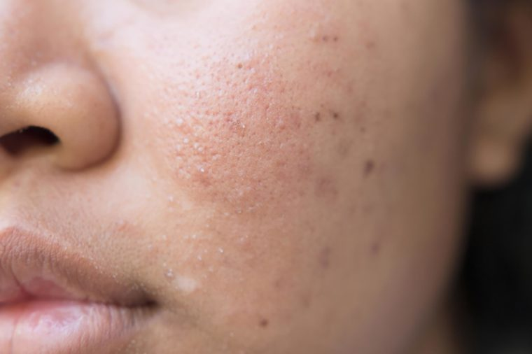 Bad Habits That Make Acne Scars Worse | Reader's Digest