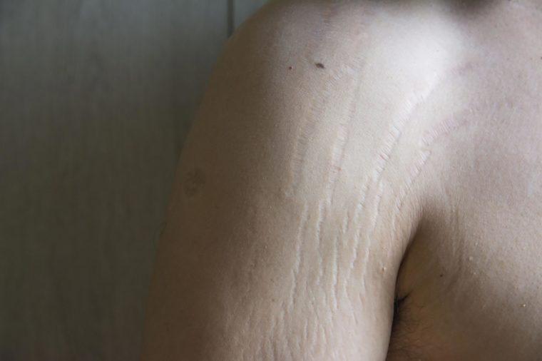 Stretch-marks