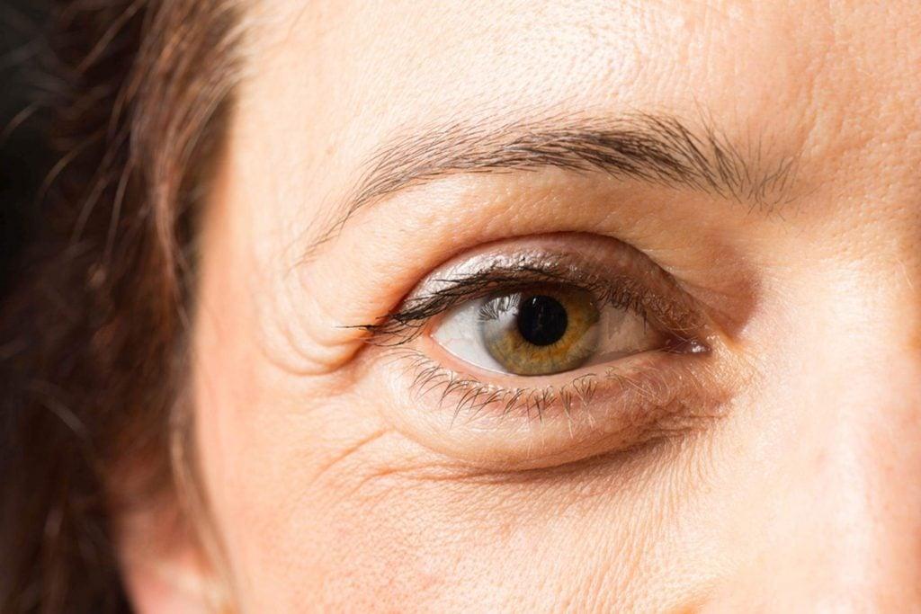 wrinkly eye