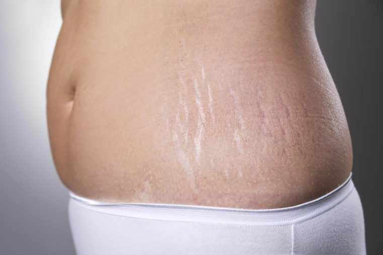 cellulite: what causes it and how to get rid of it | reader's digest