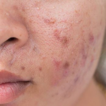 "Research Says This One ""Healthy"" Food Could Be Causing Your Acne"