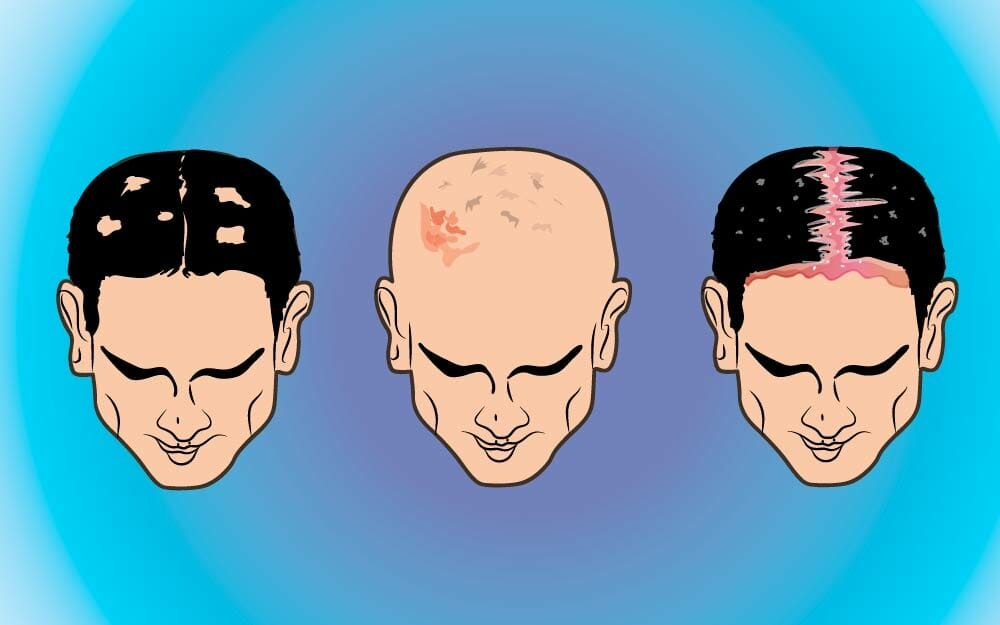 Signs-Your-Scalp-Is-Trying-to-Tell-You-Something