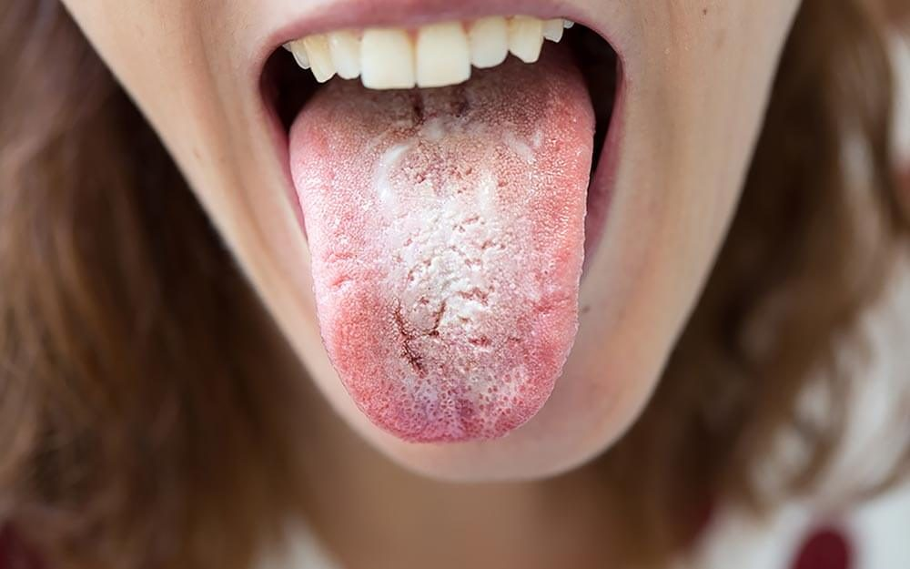 Tongue Disease: Health Clues Hiding on Your Tongue | Reader's Digest
