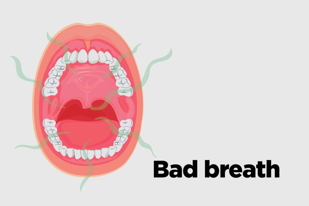 Oral Cancer Symptoms: 13 Signs You Might Ignore | Reader's Digest