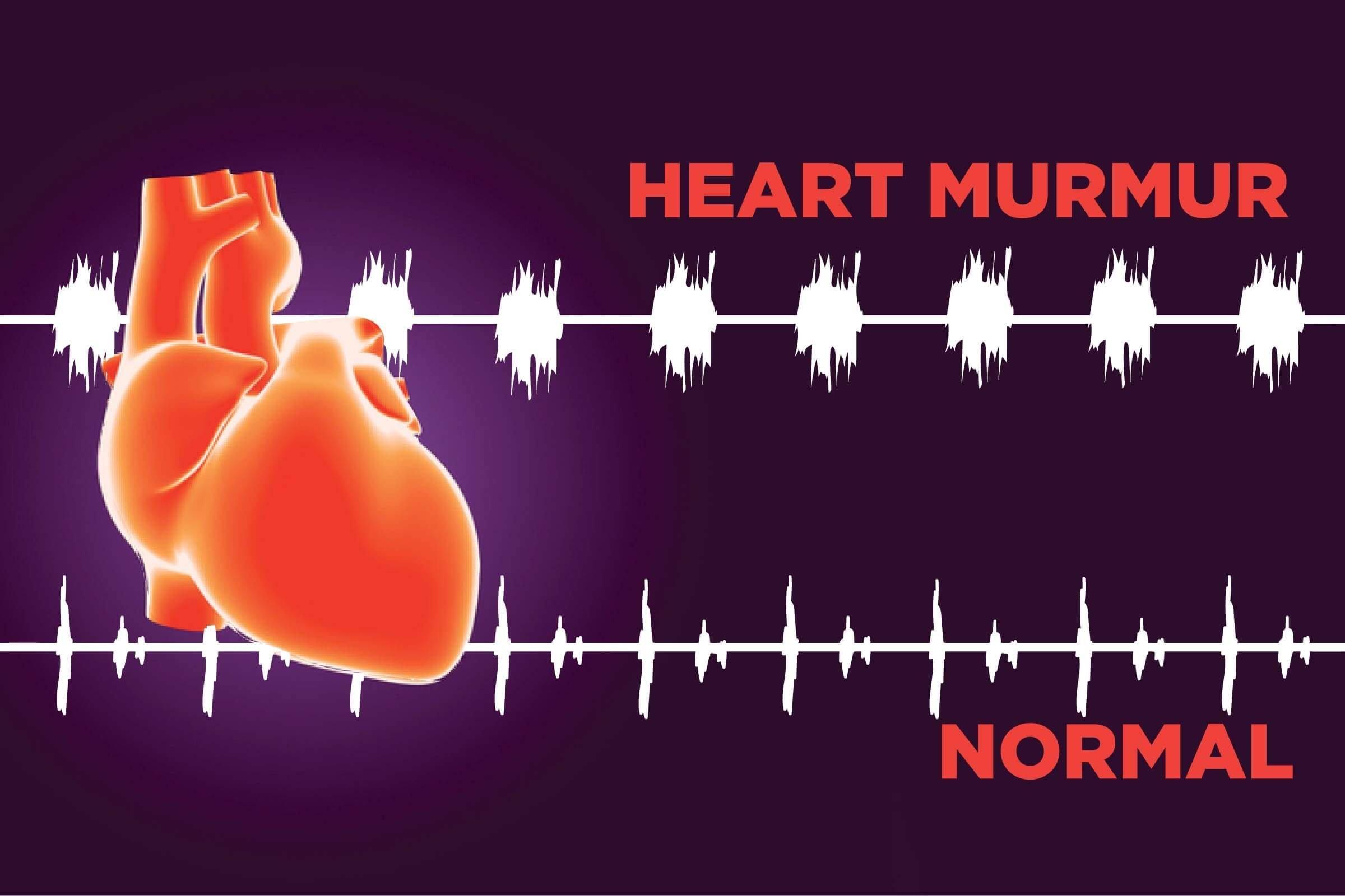 Adult heart in murmur