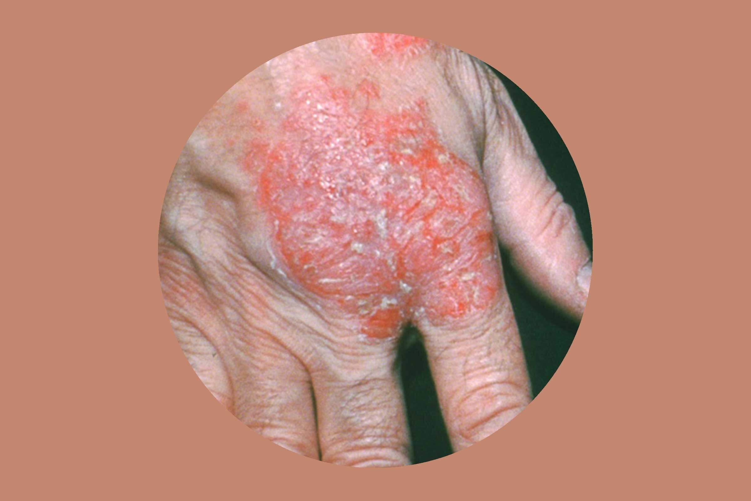 Nummular Eczema How To Get Rid Of It For Good Reader S Digest