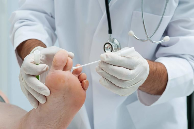 Doctor-checking-foot
