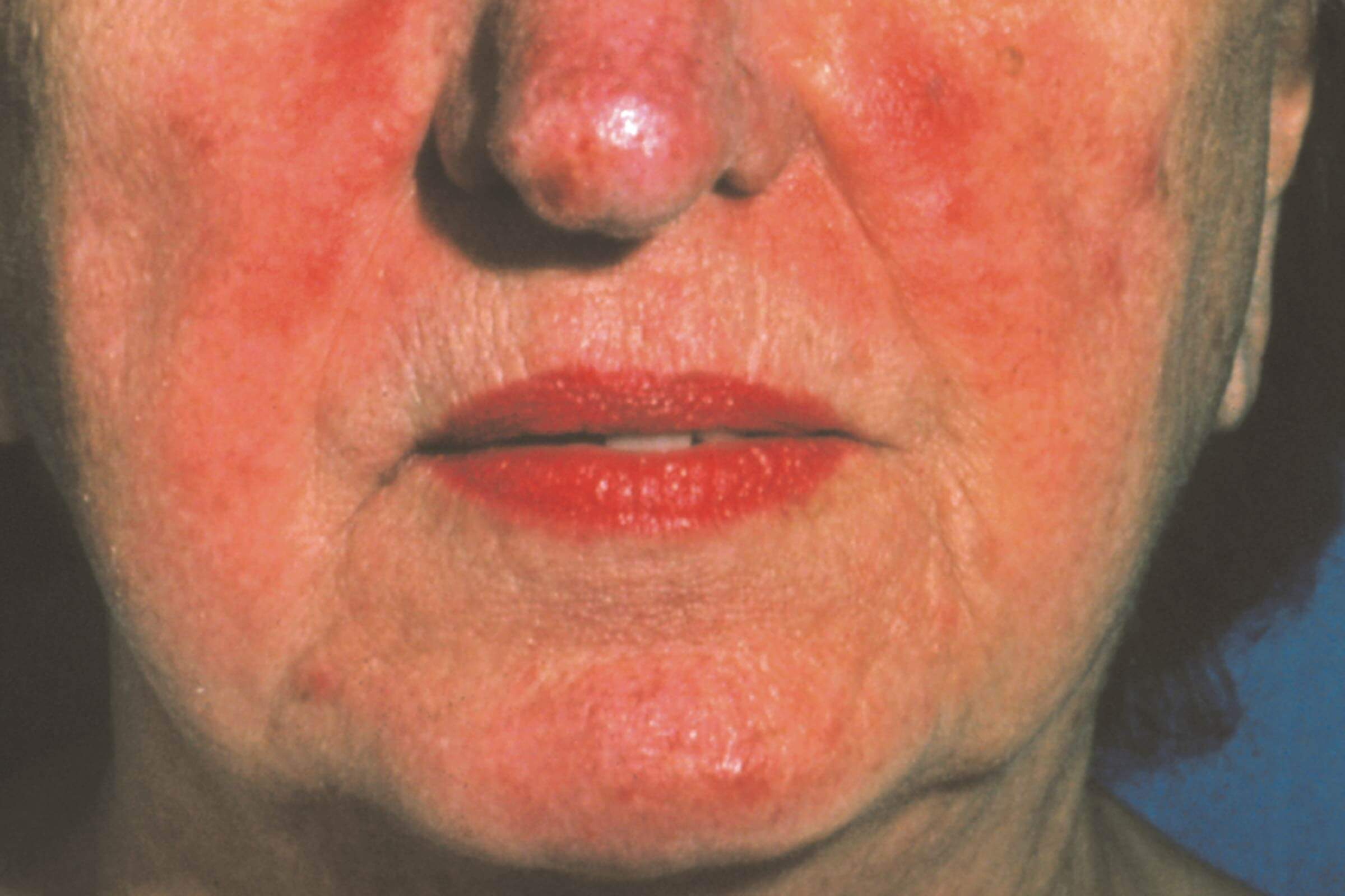 The Best Skin Care Routine for Rosacea | Reader's Digest