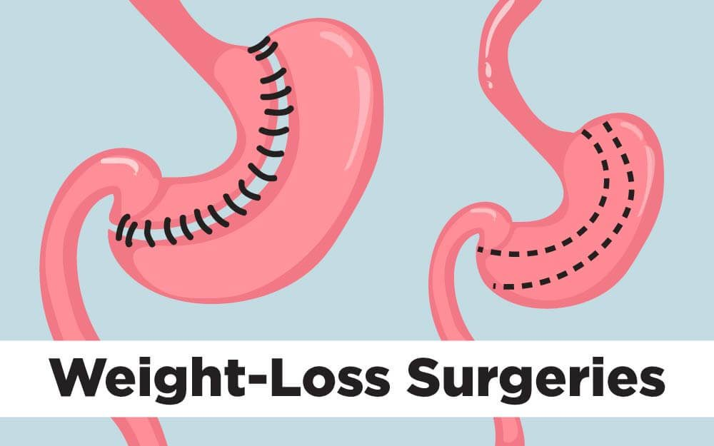 The Top Weight Loss Surgery Procedures Reader S Digest