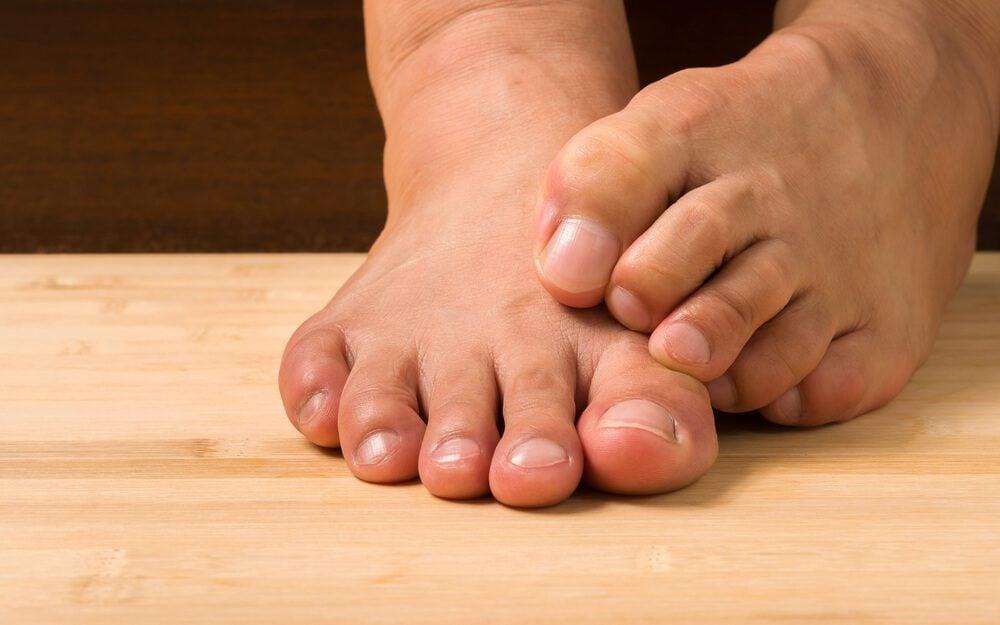 Toenail Fungus: How to Treat It, According to a Podiatrist ...