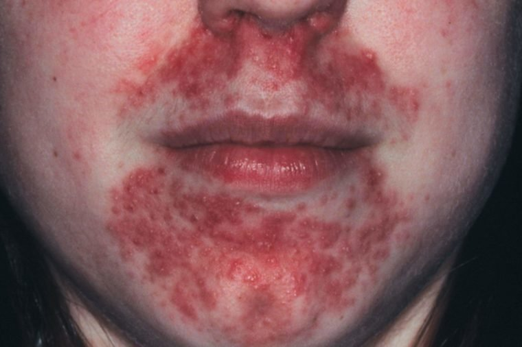 Perioral Dermatitis How To Treat It Reader S Digest