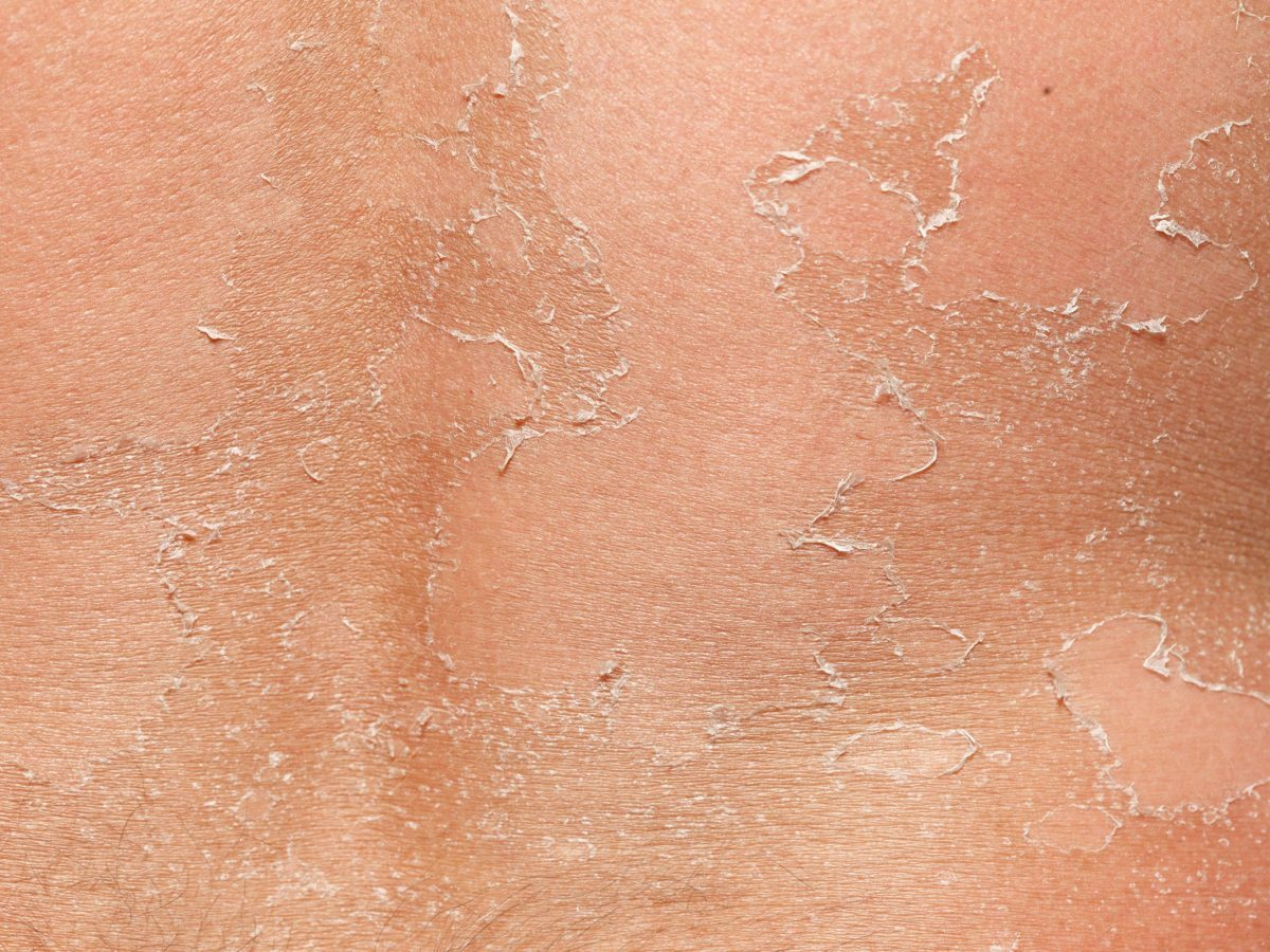 Skin Peeling: What Your Peeling Skin Wants to Tell You | Reader's Digest