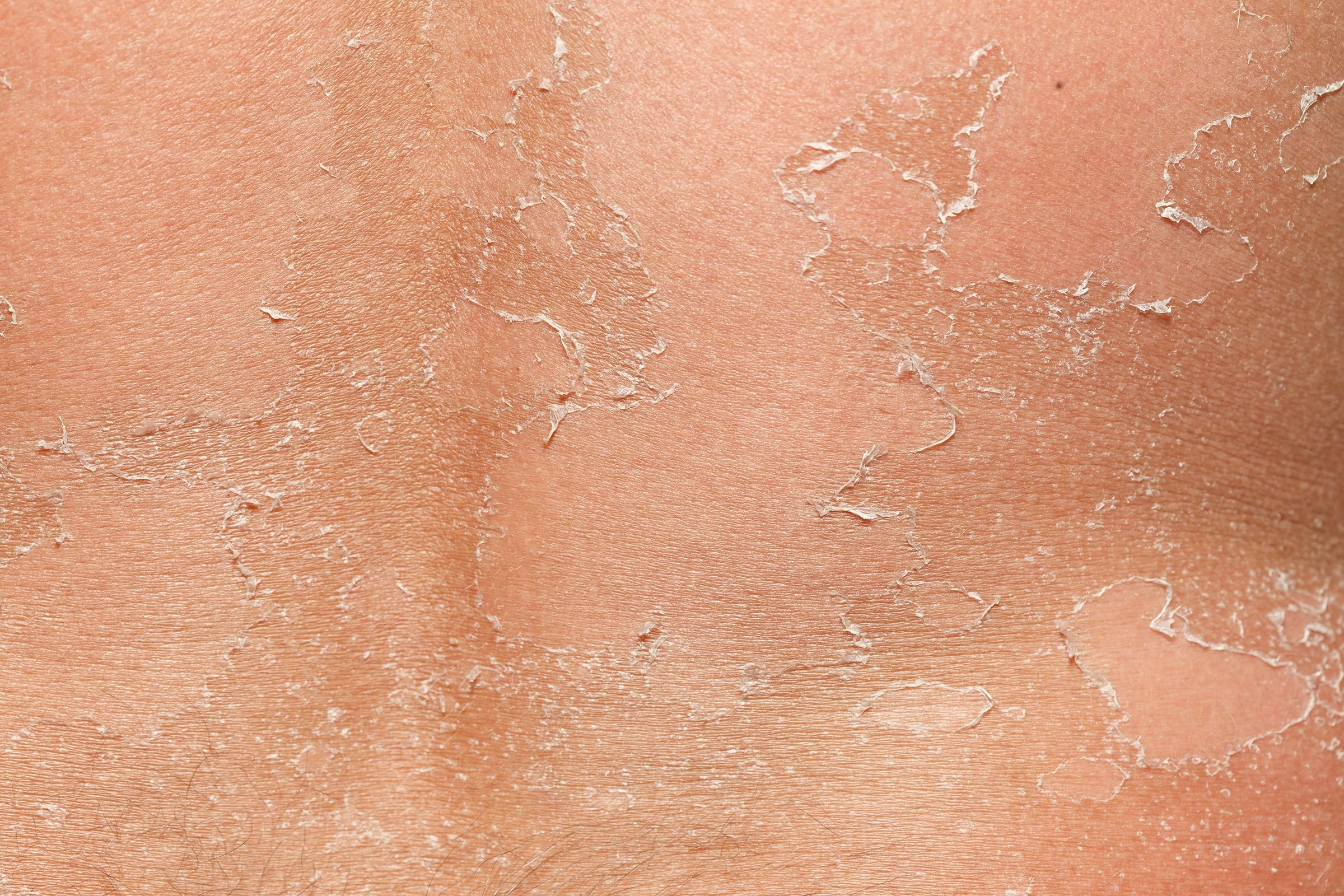 Skin Peeling: What Your Peeling Skin Wants to Tell You | The