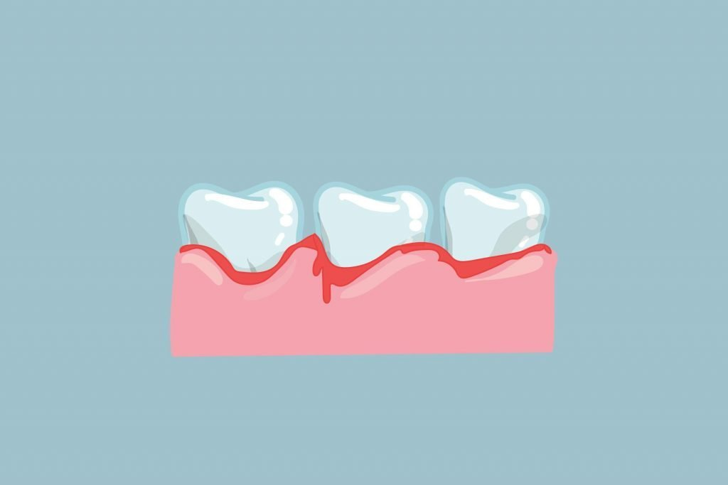 Early Signs of Gum Disease You're Probably Ignoring ...
