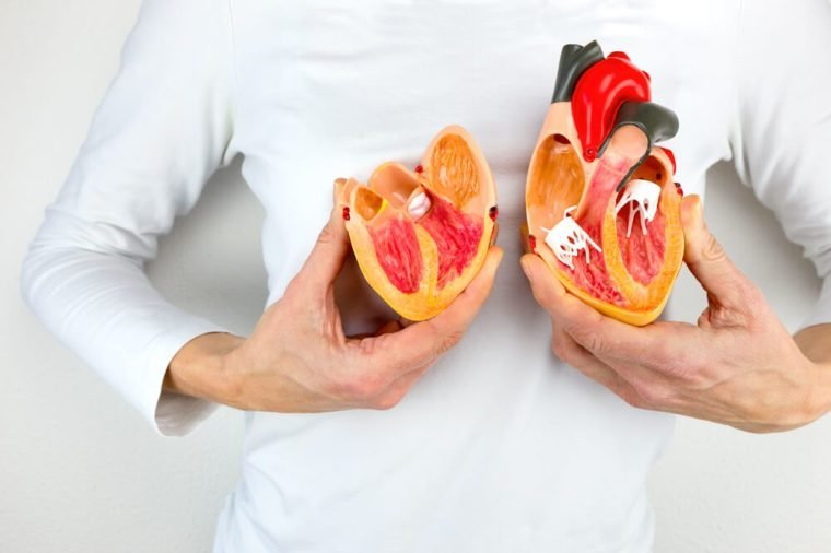 Woman holds open model heart at white body