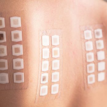 13 Skin Allergy Myths Everyone Needs to Stop Believing