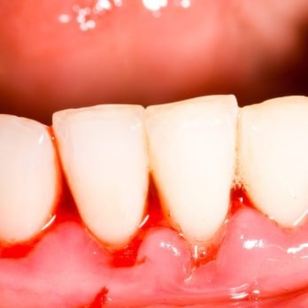 10 Gingivitis Home Remedies That Actually Work