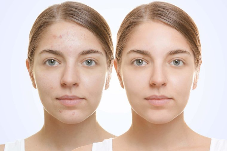 Old glycolic acid facial