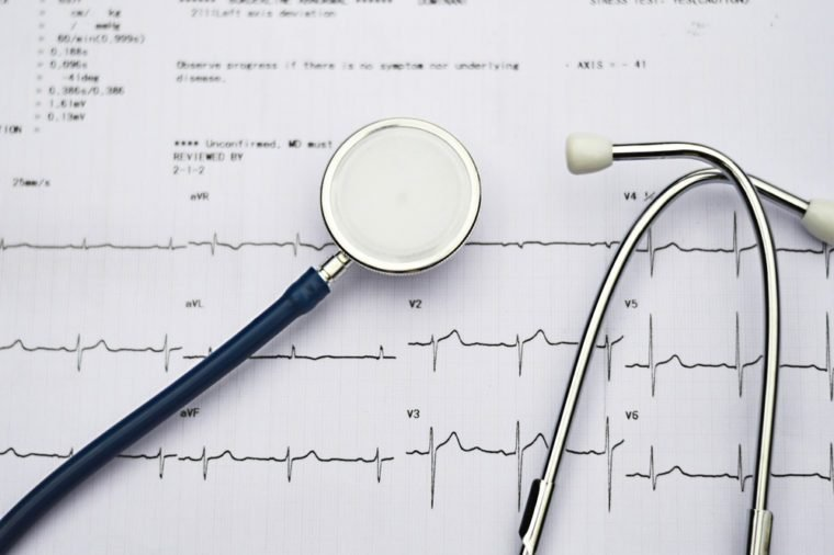 Healthy concept: Stethoscope and electrocardiogram (ECG, EKG).