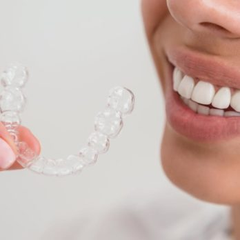 """6 Ways to Whiten Your Teeth—and 2 """"DIY Treatments"""" to Avoid"""