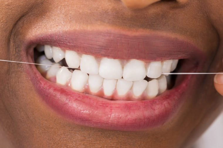 Things Your Orthodontist Won't Tell You | Reader's Digest