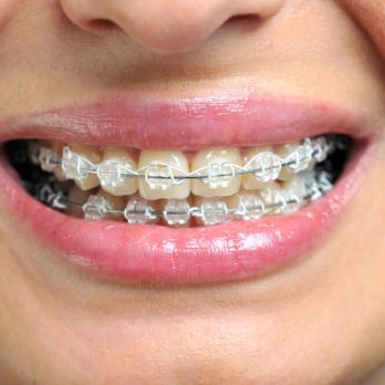 11 Things Your Orthodontist Won't Tell You