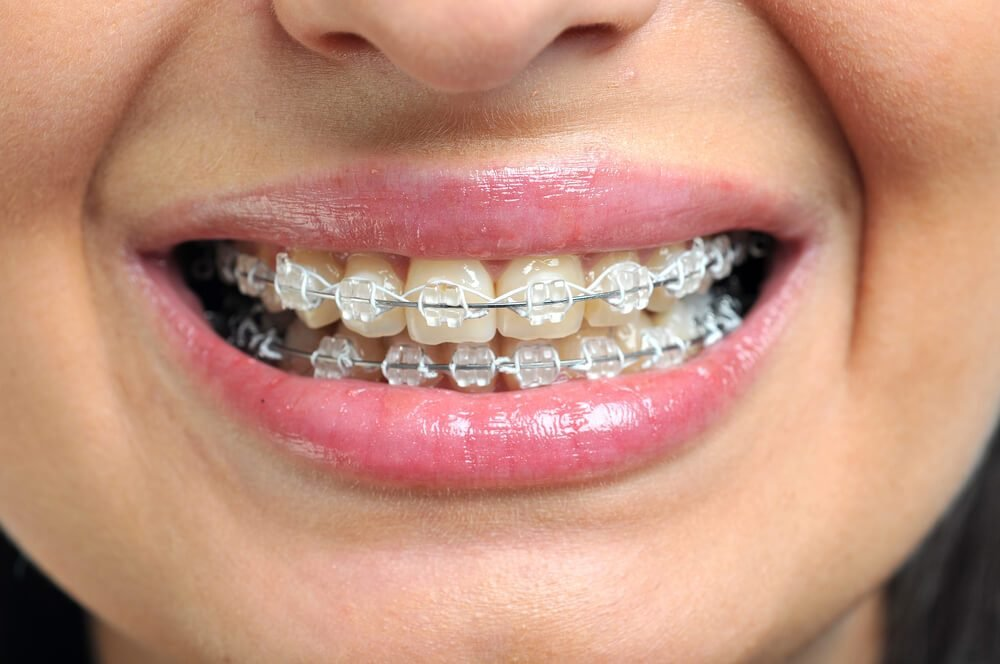 Image result for Orthodontic Treatment to Bring on a Perfect Smile