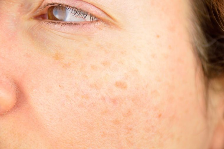 closeup of a woman cheek with liver spot causes by the large exposition sun