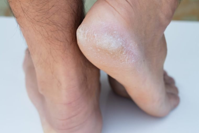 closeup on dry dehydrated skin on the heels of male feet with calluses
