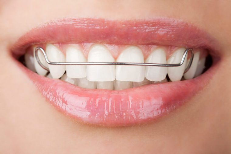 Things Your Orthodontist Won T Tell You Reader S Digest