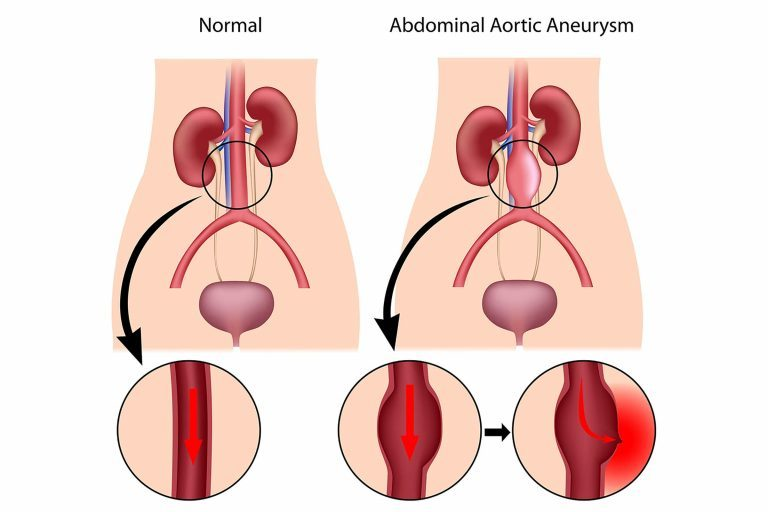 the clinical description of aneurysm Endovascular repair of abdominal aortic aneurysms endovascular repair is a preferred treatment for many people with an abdominal aortic aneurysm description.