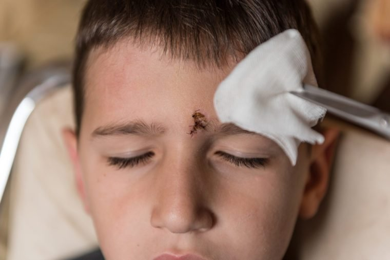 Young boy with injured forehead. Wound curing treatment